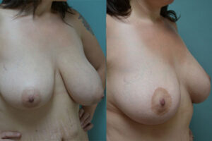 Patient 1d Breast Lift Before and After