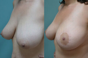 Patient 1b Breast Lift Before and After