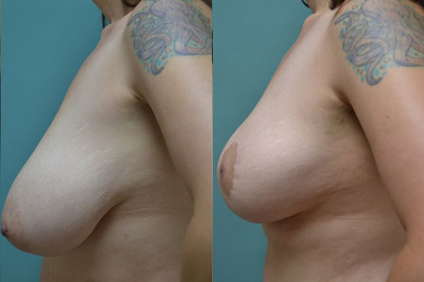 Patient 1a Breast Lift Before and After