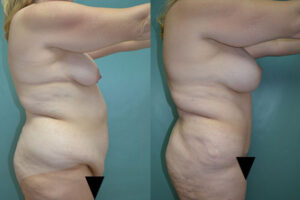 Patient 5a Tummy Tuck Before and After