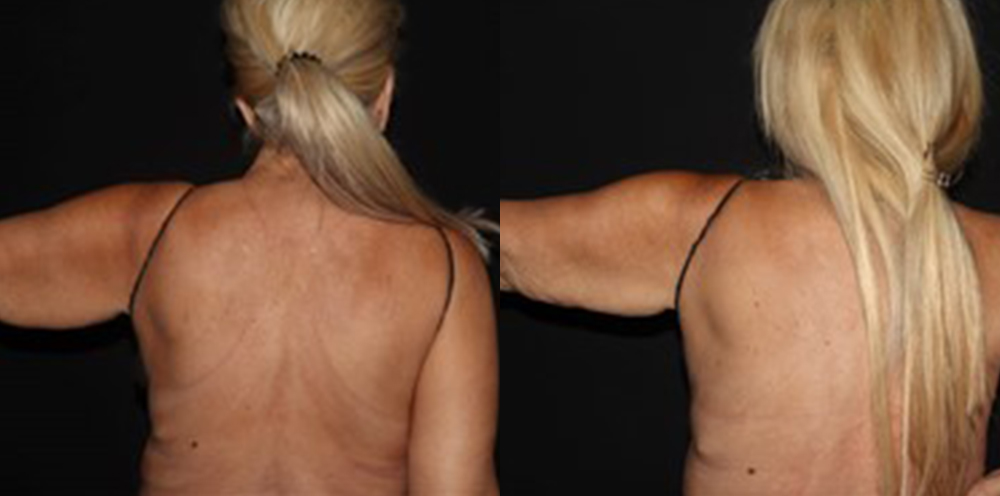 CoolSculpting Before and After - Patient 6A