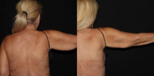 CoolSculpting Before and After - Patient 6B